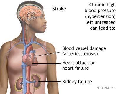 Chronic Kidney Disease and Stroke