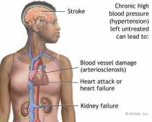 Chronic Kidney Disease and Stroke