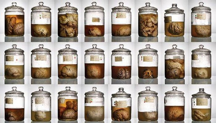 100 brains jar missing from Texas University