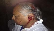 AL MP Chhabi Biswas injured in Bakshibazar clash