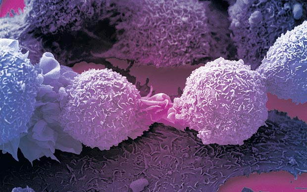 Cancer caused by bad luck, not unhealthy lifestyle or inherited genes: Study