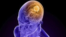 Plant extract may help fight brain tumour