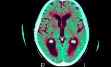 Alzheimer\'s breakthrough as ultrasound successfully treats disease in mice