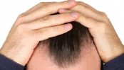 A drug promises to cure baldness