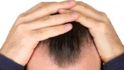 Receding hairline? Now a drug promises to cure baldness