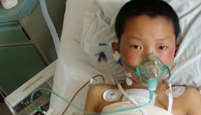 Children with congenital heart disease rising