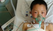 Children with congenital heart disease rising