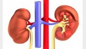 Kidney stones on the rise among US youth