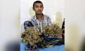 Surgery for Bangladesh's 'tree man' to remove warts