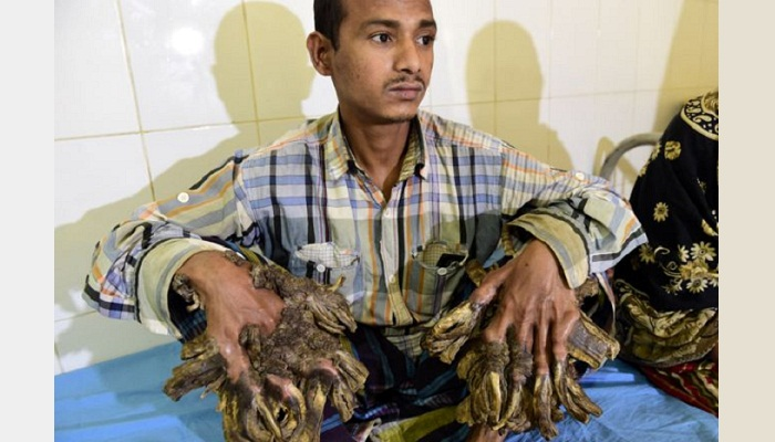 'Tree man' Abul Bajandar to get government-funded surgery