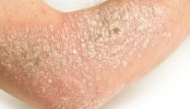 100 million people affected by psoriasis: WHO