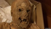 18th Century Mummies Reveal Clues to Colon Cancer
