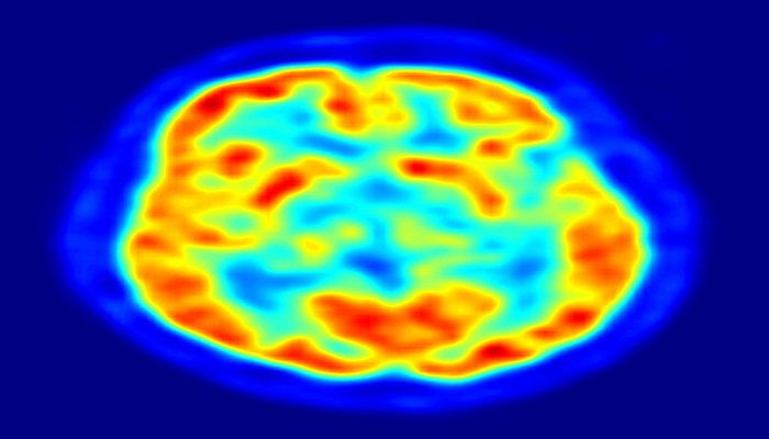 Parkinson's slows down thinking process more than speech