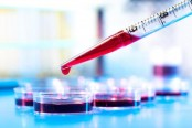 New technique for quick blood test results could help emergency patients