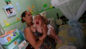 US health experts confirm that Zika causes birth defects