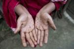 12% Bangladeshis at arsenic risk