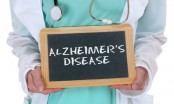 Combo therapy may help slow Alzheimer's down