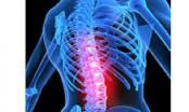 Chronic back pain linked to illicit drug use