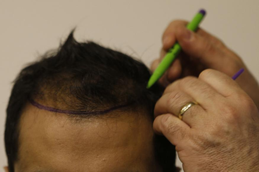 Things to consider before getting hair transplant