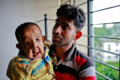Boy with premature aging symptoms at DMCH