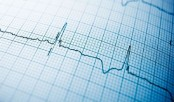 Tool calculates when you'll have a heart attack - or stroke