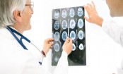 Blood Clot Removal Could Help More Stroke Victims, Study Finds