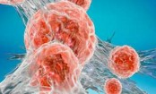 NHS cancer testing 'at breaking point'