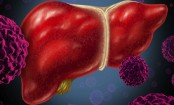 Eat these foods to keep your liver healthy
