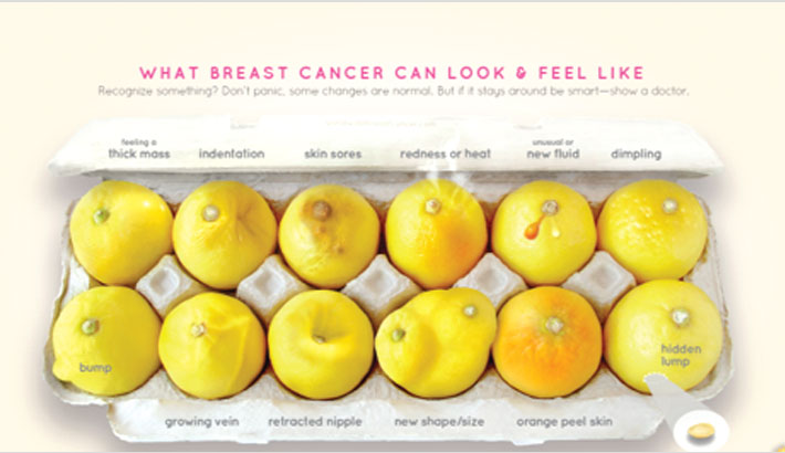 Signs of breast cancer explained, using lemons