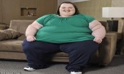 Severely obese people more likely to die at home
