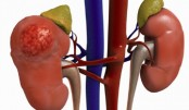 'Over 20 million suffer from kidney ailments'
