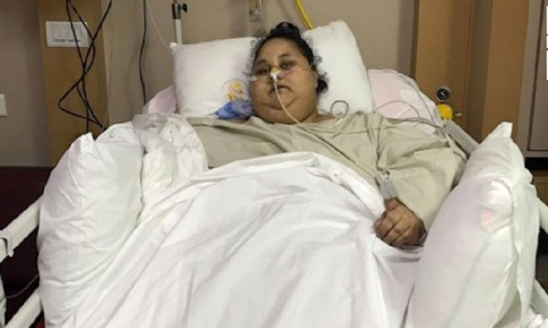 World's heaviest woman smiles after surgery
