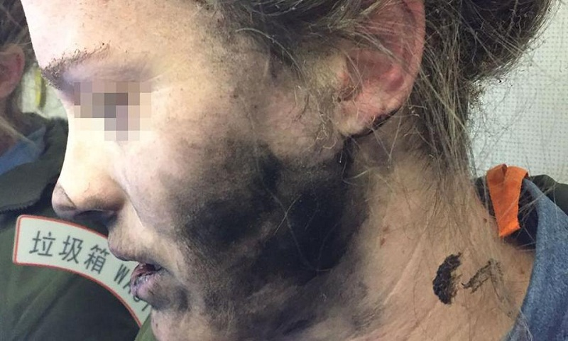 Headphone batteries explode, injures passenger on flight to Australia