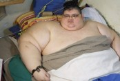 World's most obese man, 32, has been on 3-month diet for surgery