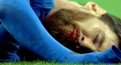Blood-tainted face bolstered Messi!