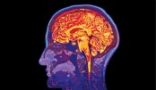 Brain may be organised by functions