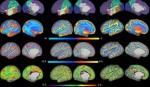 Unique scans reveal how brains grow