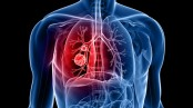 Lung cancer ups suicide risk in men