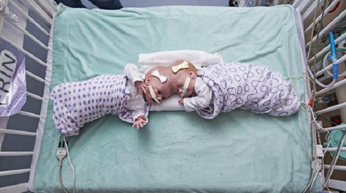 Surgeons separate 10-month-old twin girls joined at the head