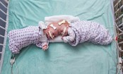 Philadelphia hospital separates conjoined 10-month-old twins