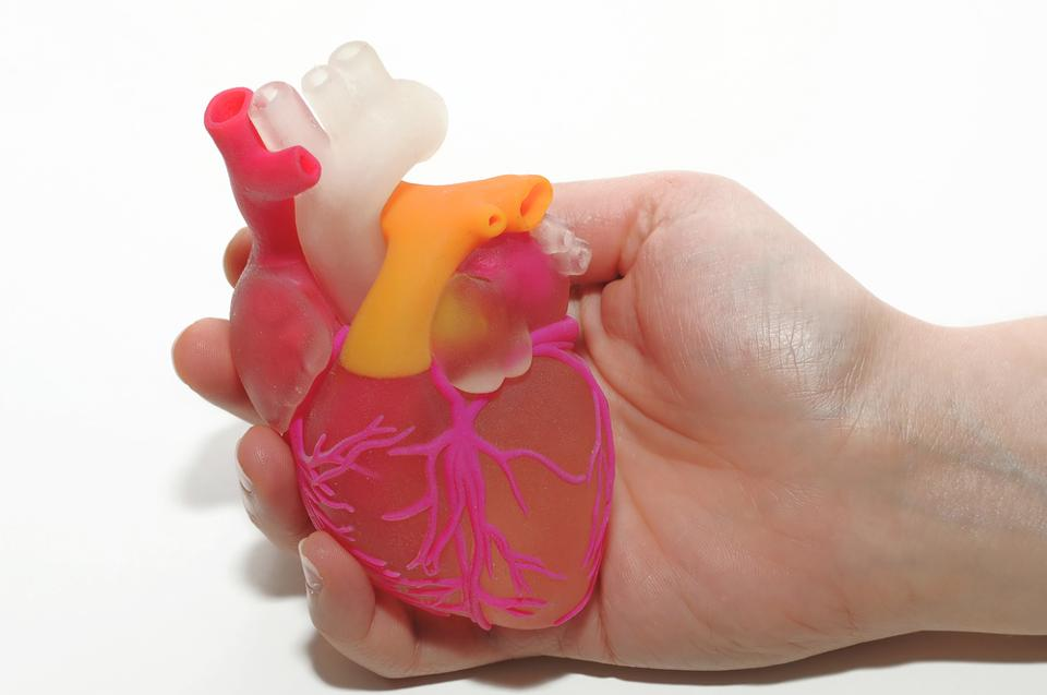 3-D printed models to improve heart valve replacements