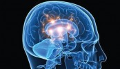 Biotech company to bring brain-dead to life
