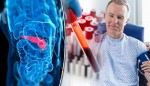 Blood test may help find early pancreatic cancer