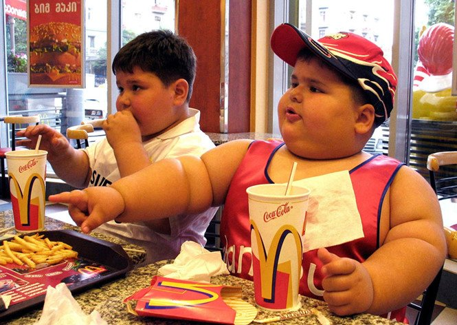 Childhood obesity may lead to hip disease, suggests research