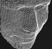 3-D digital technology helps reveal face of Bronze Age farmer