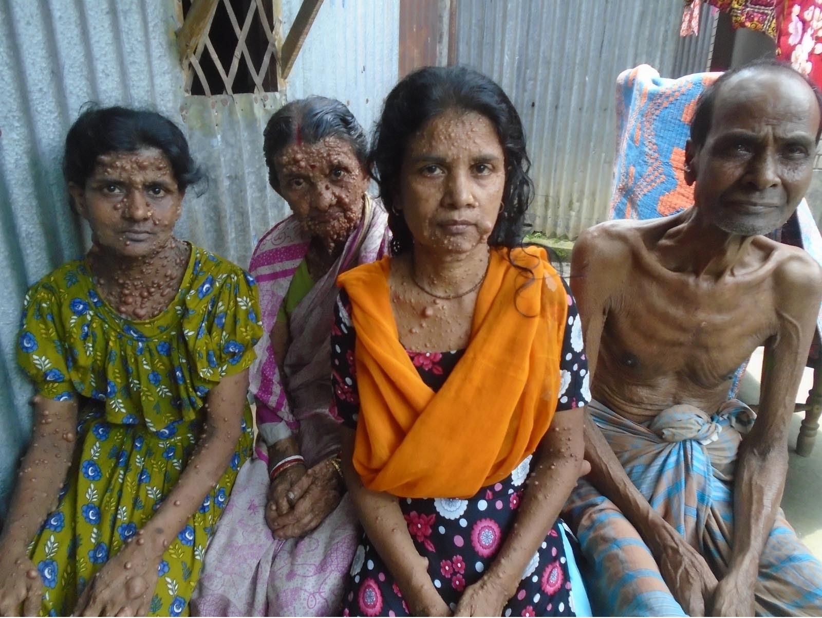 A curable disease isolates a Kurigram family!