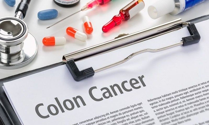 How to spot and treat colorectal cancer