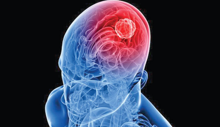 Zika virus to treat aggressive adult brain cancer
