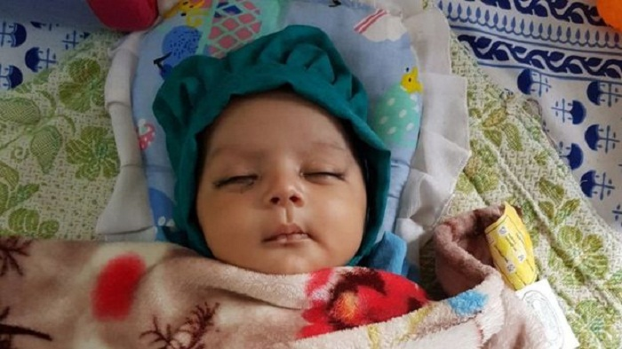 India doctors remove seven teeth from infant