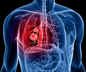 Indoor air pollution major cause of COPD in rural Bangladesh: expert